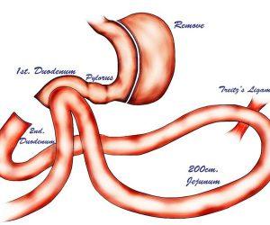 laparoscopic-duodenojejunal-bypass-with-sleeve