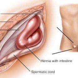 laparoscopic-inguinal-hernia-repair