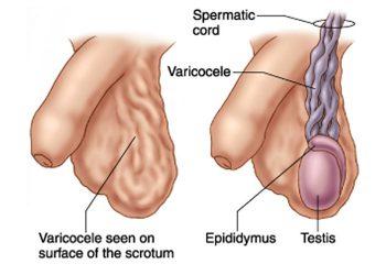 laparoscopic-varicocelectomy